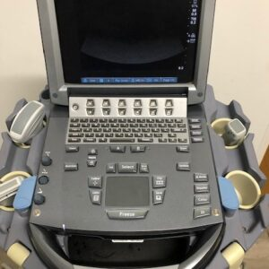 front view portable ultrasound